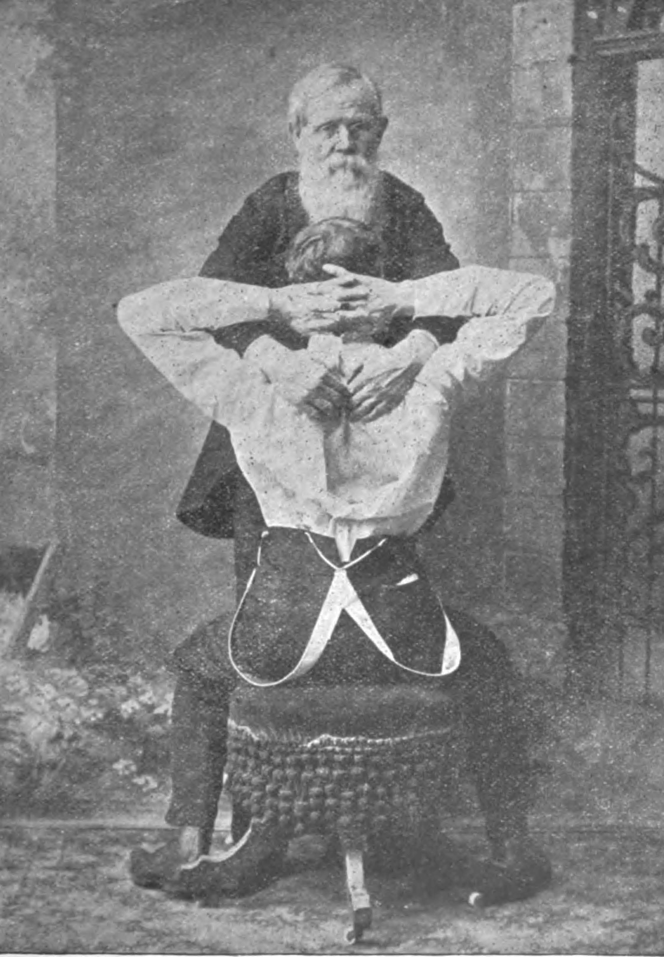 Davis demonstrating chest and spinal cord extention in 1909.